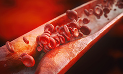 Atherosclerosis can be the cause of prehypertension