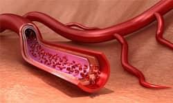 Blood Vessel Dilators (Vasodilators)